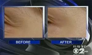 Botox cream before & after photos