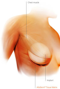 Alloderm breast reconstruction study