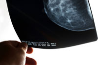 mammograms after fat transfer breast augmentation