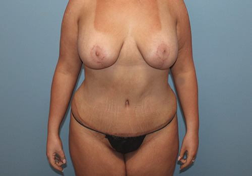 Tummy Tuck in The Woodlands for Houston, TX