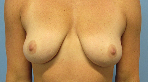 Breast Lift With Augmentation in The Woodlands, TX