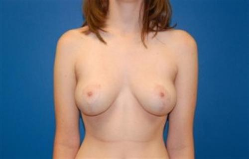 Breast Lift in The Woodlands for Houston, TX