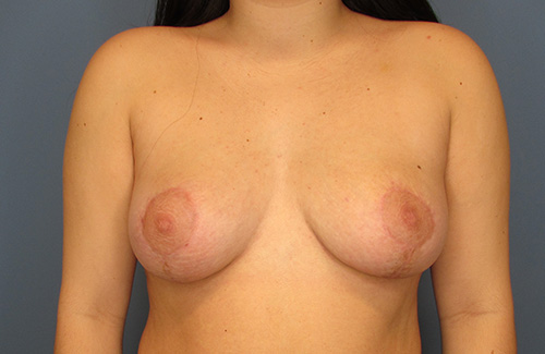 Breast Reduction in The Woodlands, TX