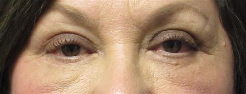 Eyelid Surgery in The Woodlands