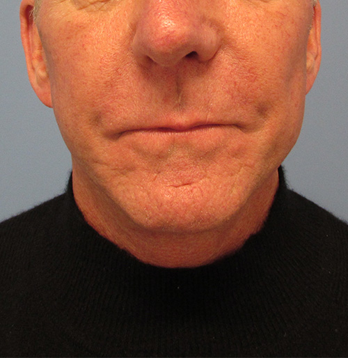 Facelift Surgery in The Woodlands, TX